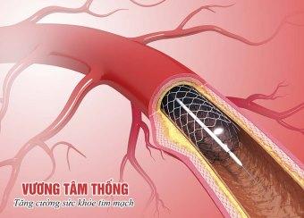 Đặt stent mạch vành nhằm khơi thông dòng máu bị tắc hẹp